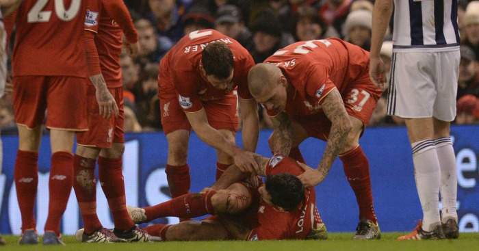 Dejan Lovren: Defender injured after hefty Craig Gardner tackle